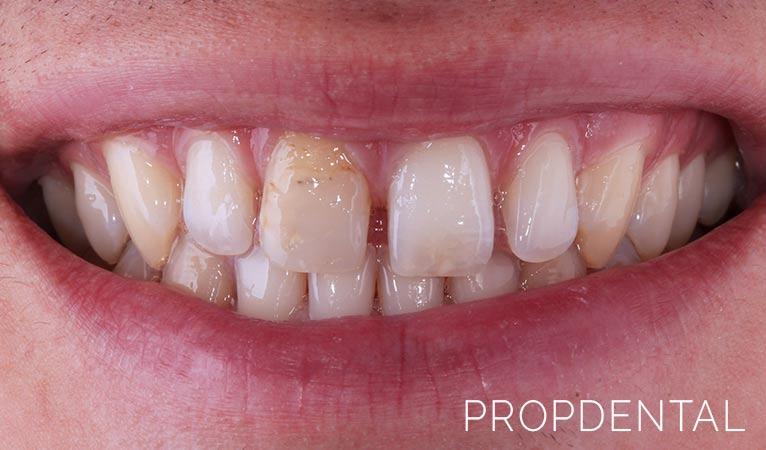 Diastema o dientes separados: las claves
