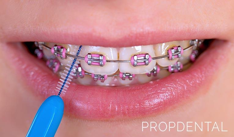 Hábitos de higiene bucal en la ortodoncia con brackets
