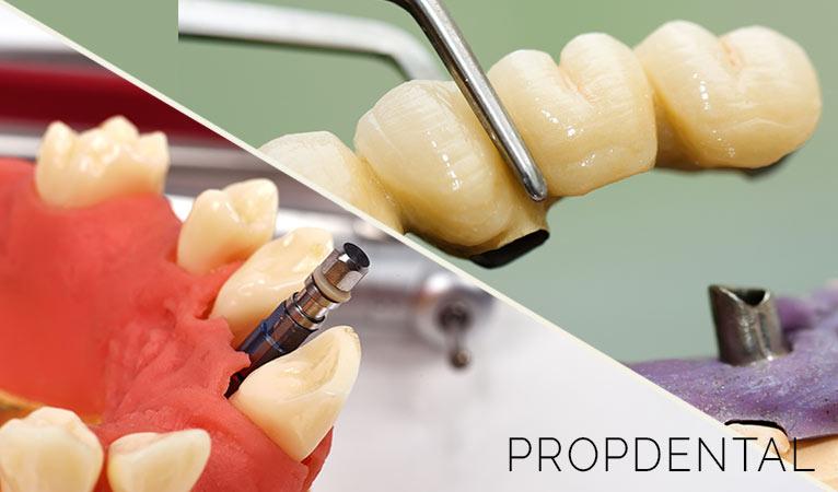 Implantes vs. puentes dentales: ¿Qué necesito?