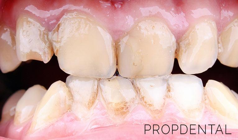 Las claves sobre la enfermedad periodontal