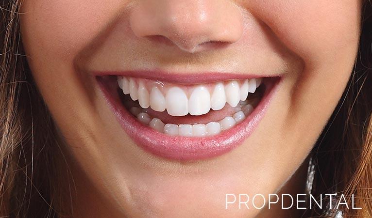 Pasos a seguir después de la ortodoncia