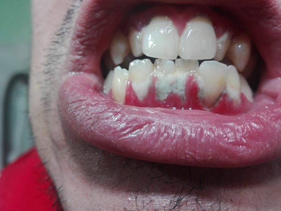 Enfermedad oral