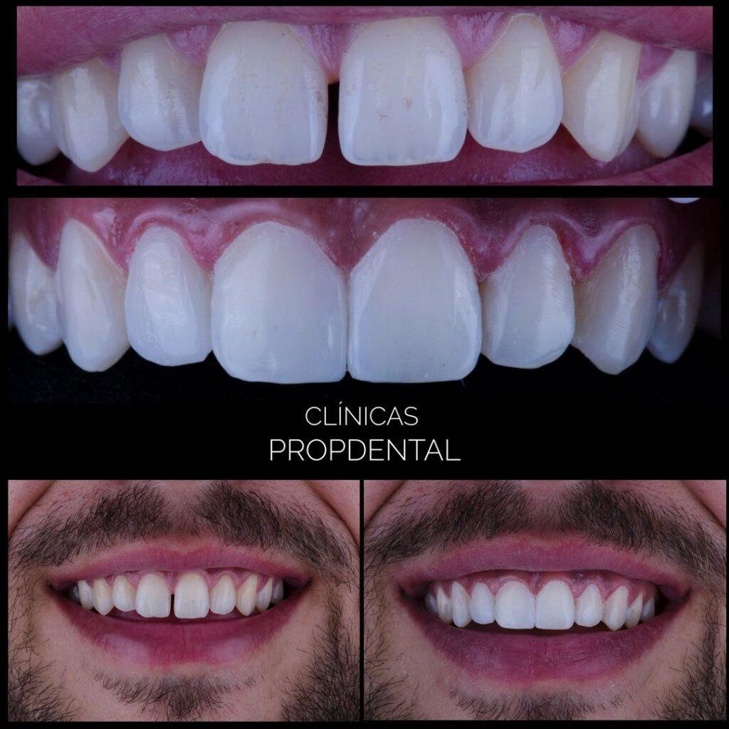 carillas estéticas composite sonrisa