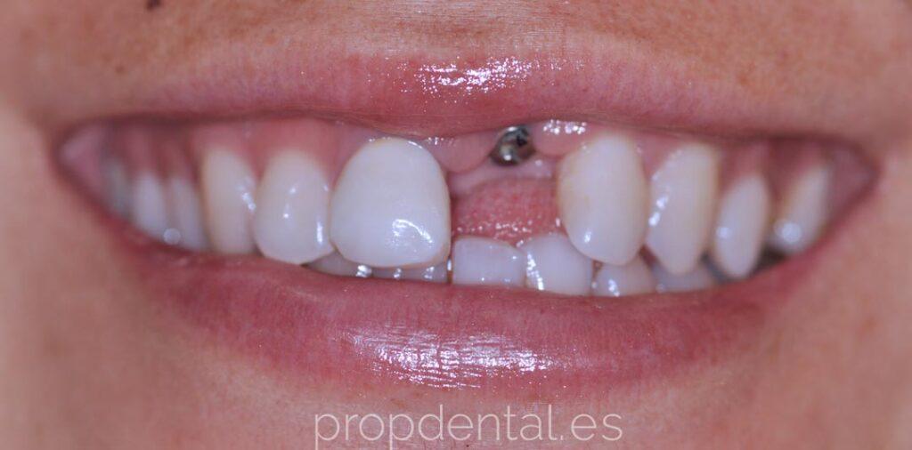 caso clínico colocación implante individual
