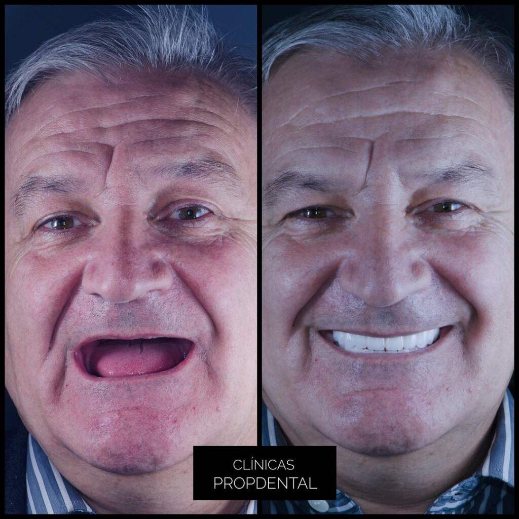 caso prótesis circonio sonrisa