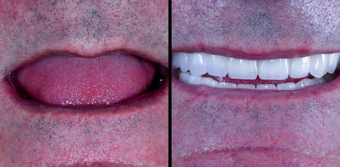 caso prótesis de circonio sobre implantes