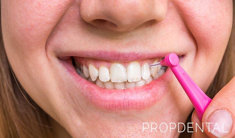 limpieza de dientes con cepillos interproximales