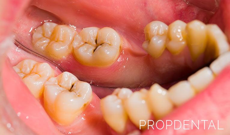 Preguntas frecuentes sobre la caries dental