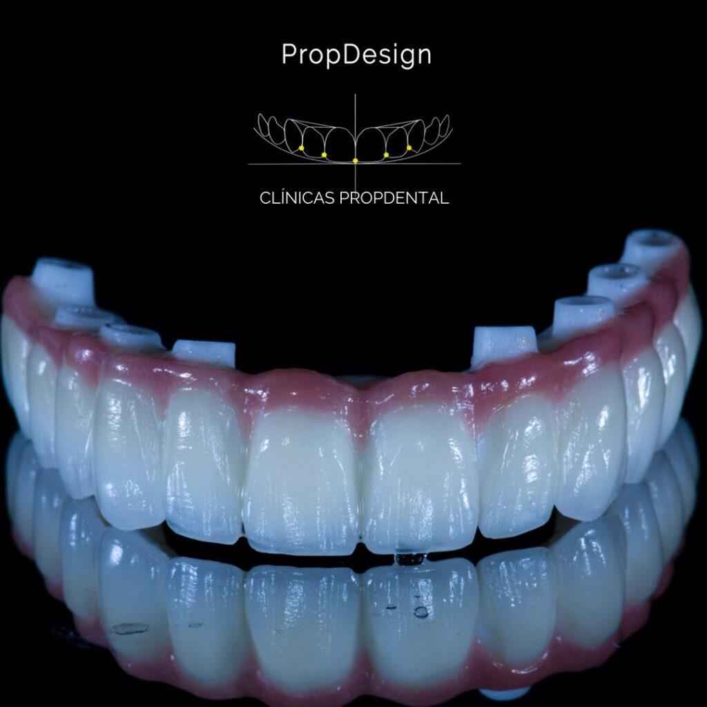 prótesis sobre implantes barcelona