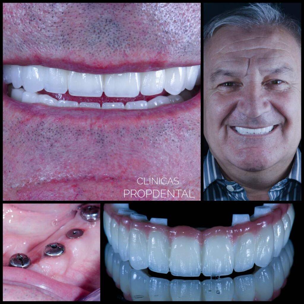 prótesis sobre implantes circonio