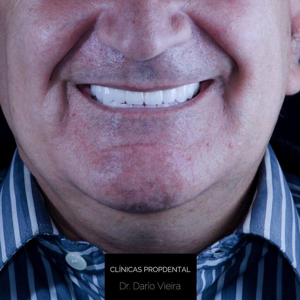 prótesis sobre implantes sonrisa final