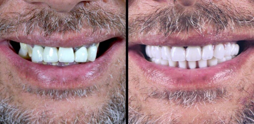 Caso clínico de reconstrucción completa con implantes