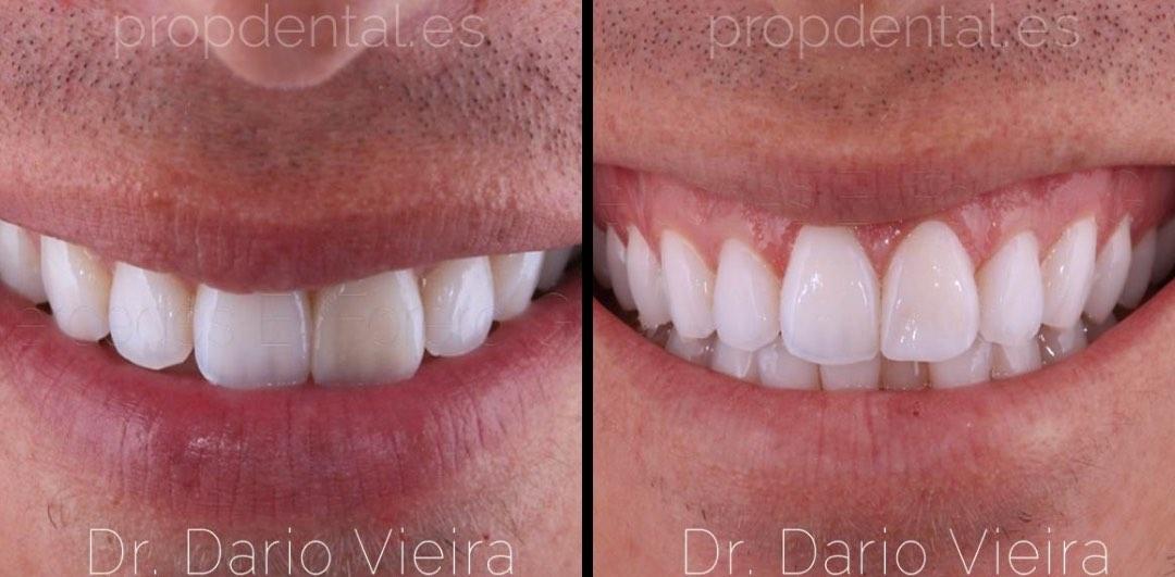 Caso de restauración de fractura dental
