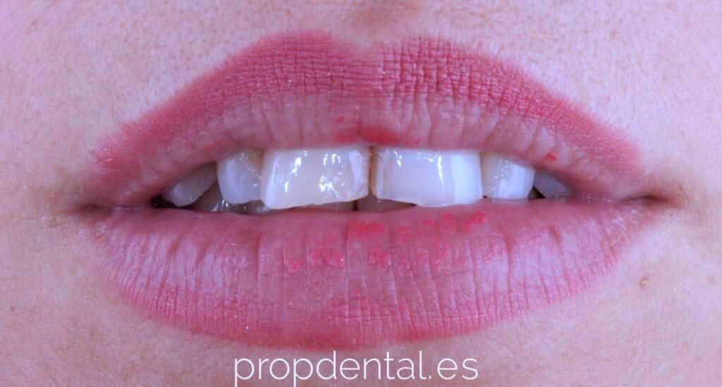 bruxismo dental frontal