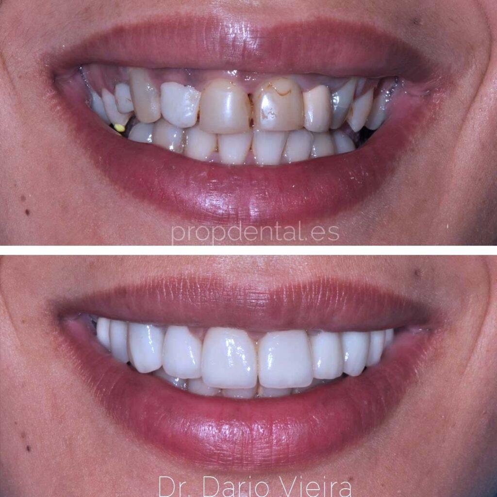 carillas-dentales-antes-y-después