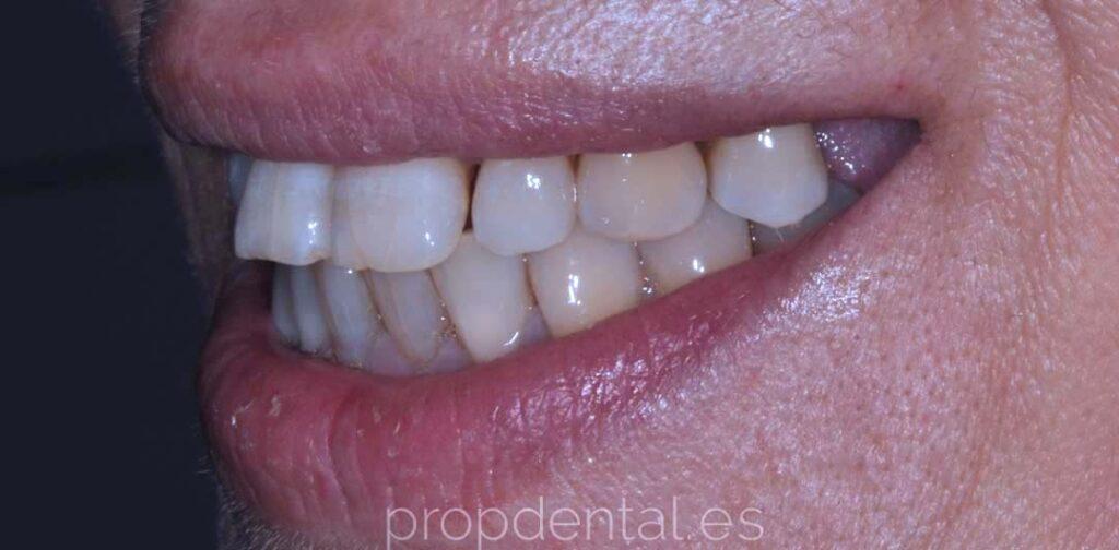 caso de implantes sonrisa mejorada