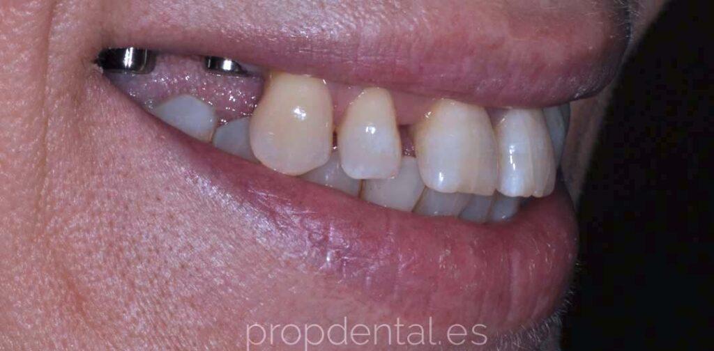 caso implantes sonrisa