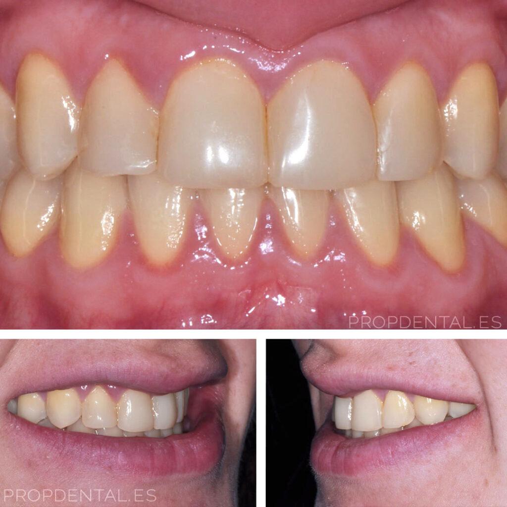 caso luminers dientes amarillos
