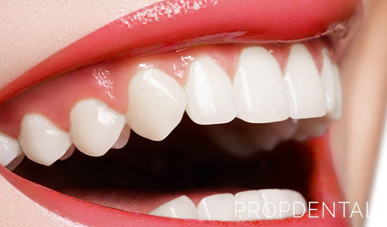 ¿Qué ocurre si se daña el esmalte de los dientes?
