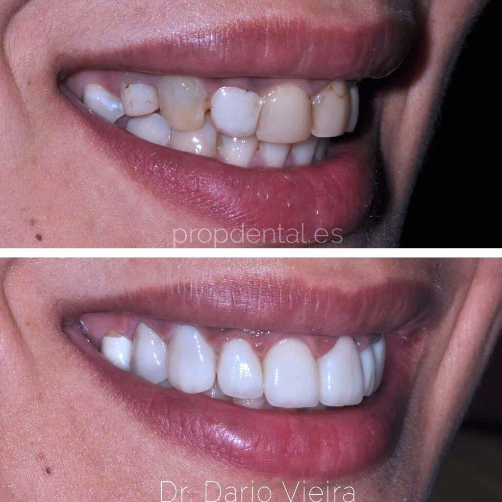estética-dental-barcelona