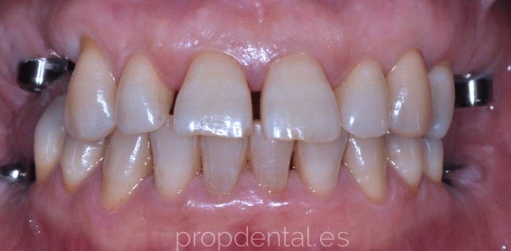 falta de varios dientes