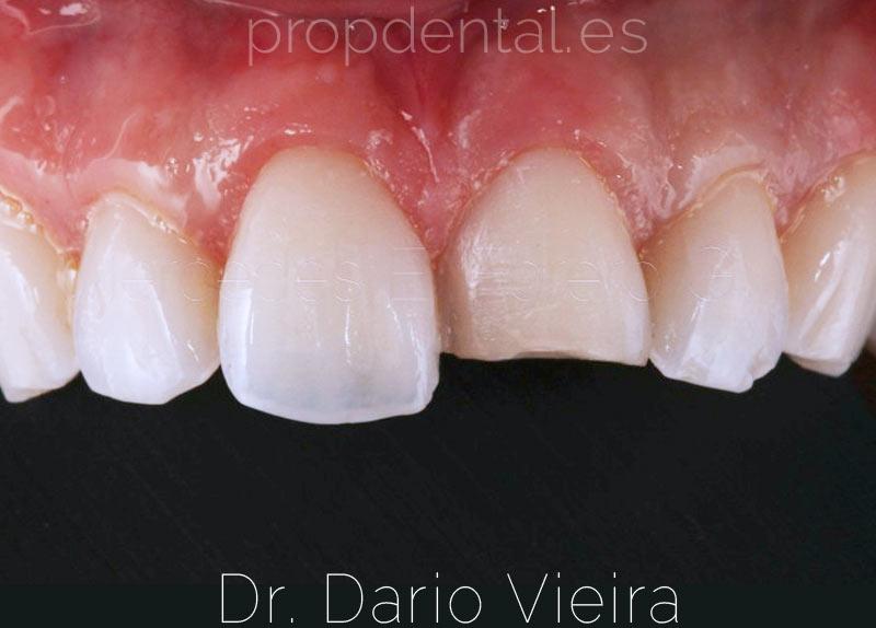 fase-preparación-fractura-dental