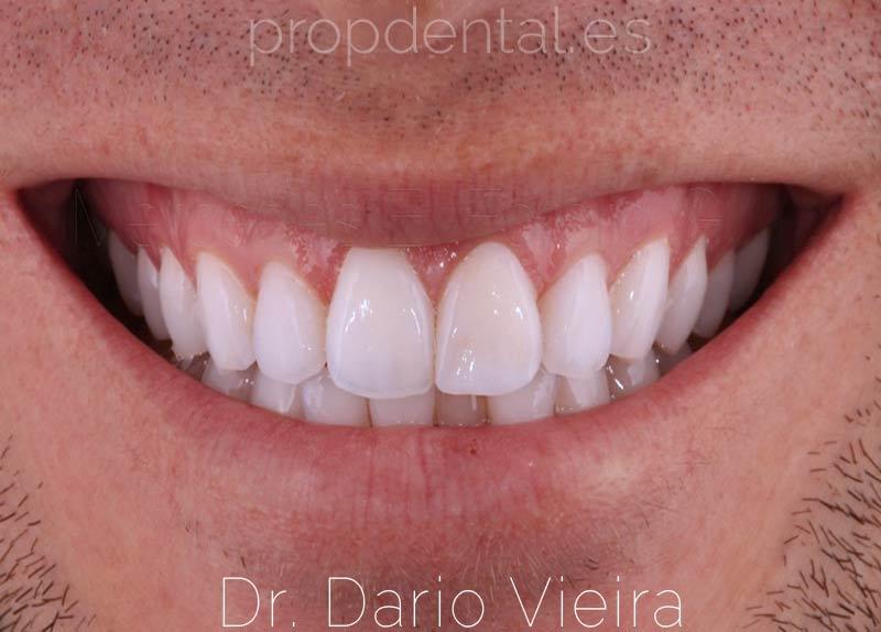 fisura-dental-sonrisa