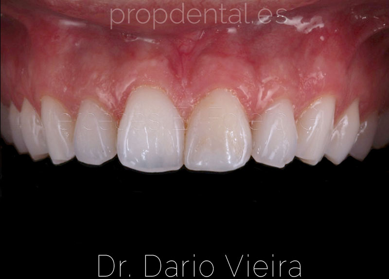 fractura-dental-acabada