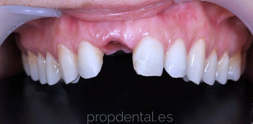 implante-unitario-perdida-diente