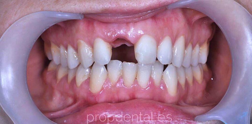 implante-unitario sin diente