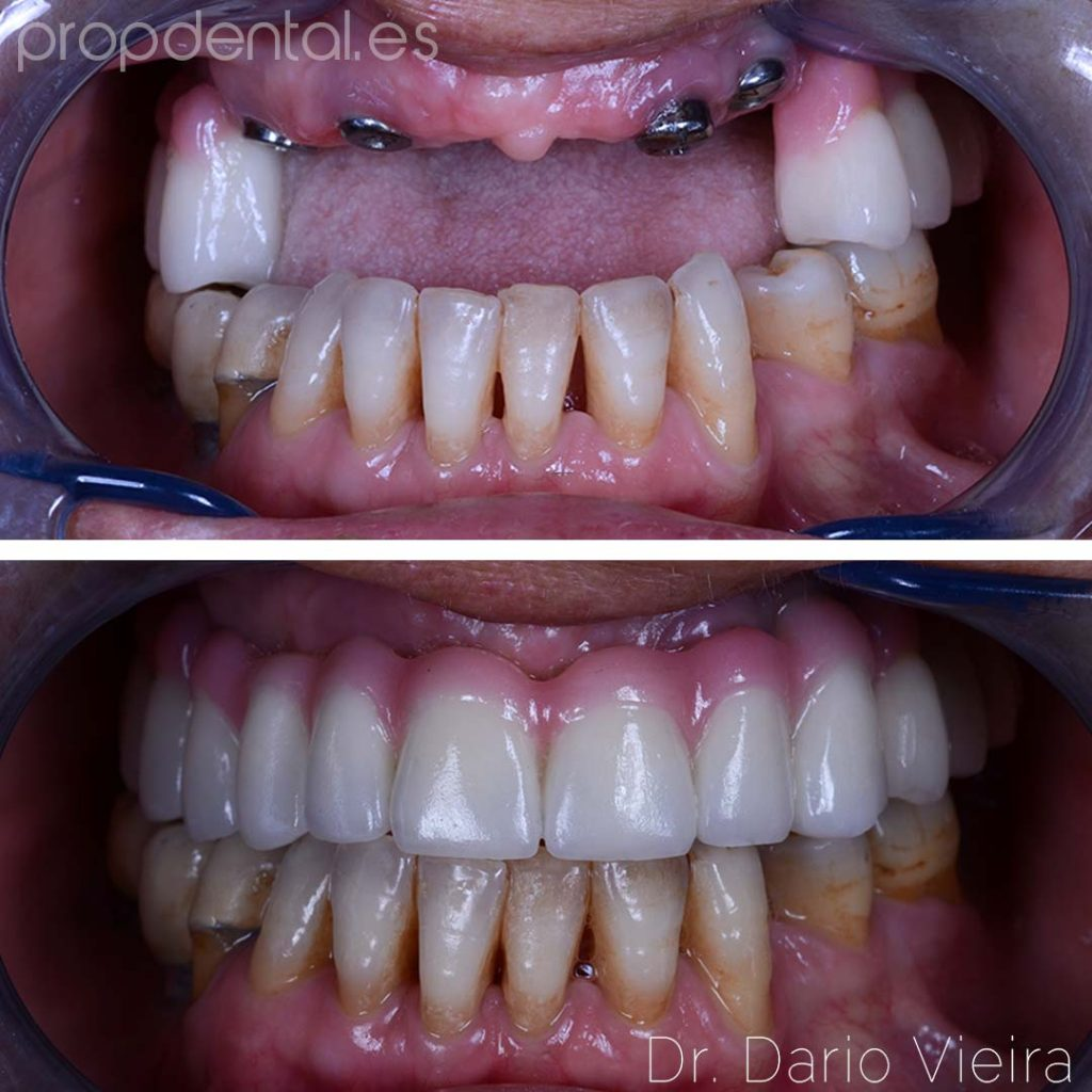 implantes dentales paciente