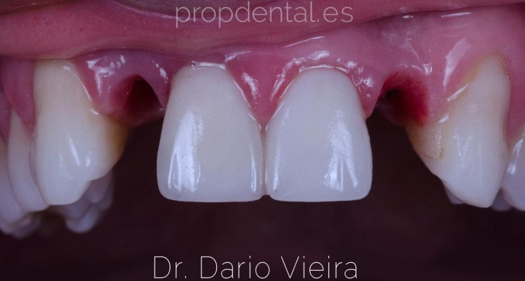 incisivos laterales sin dientes
