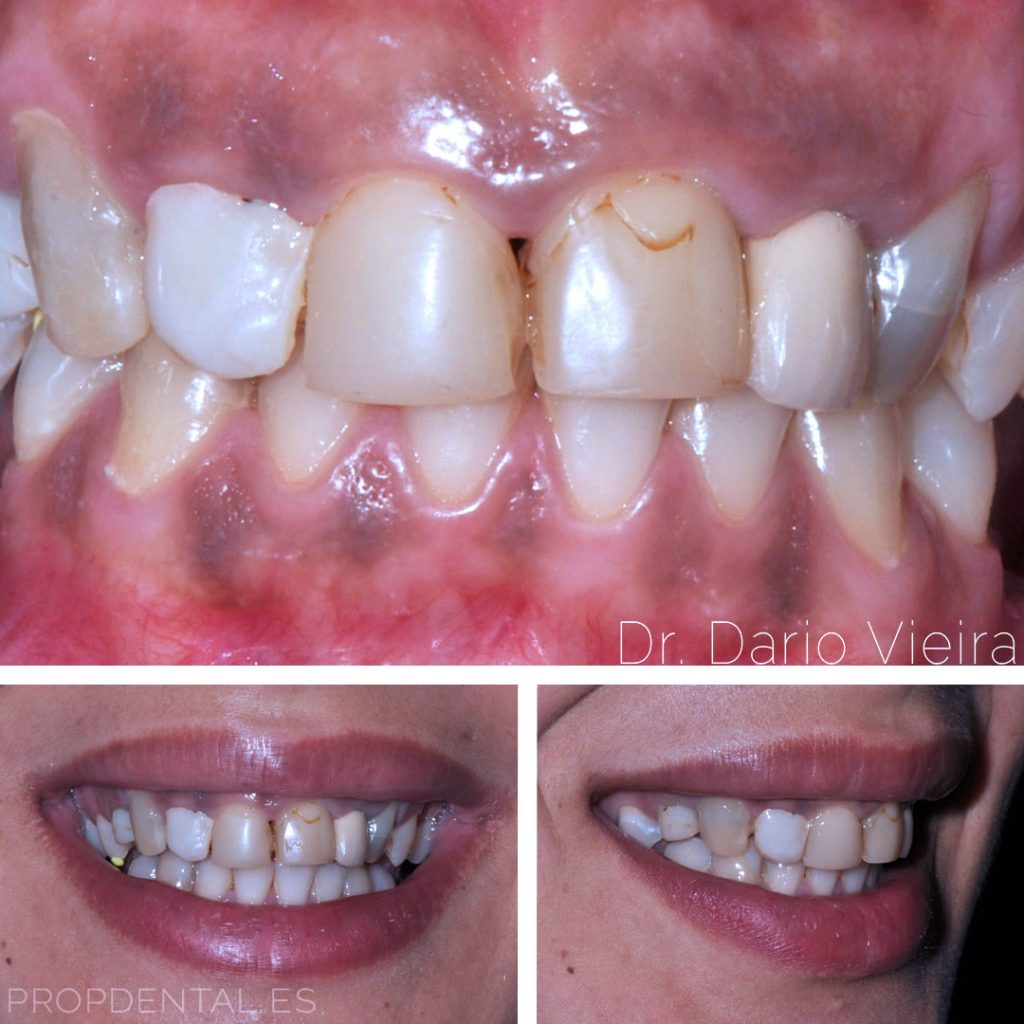indicaciones en estética dental