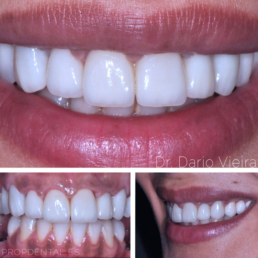 odontologia-cosmética