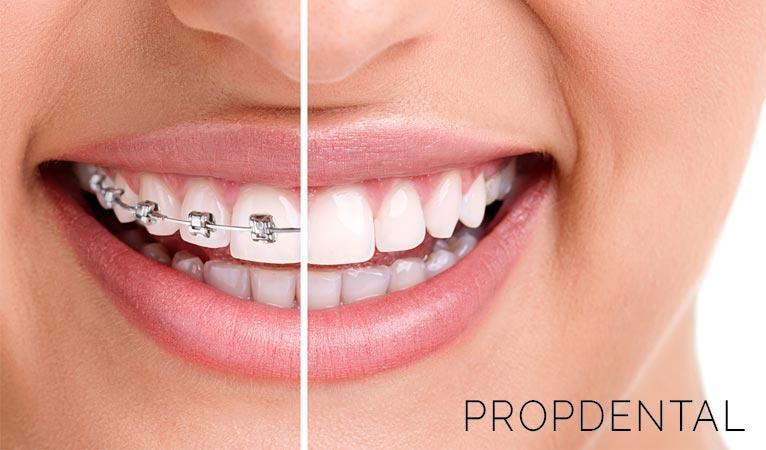 Ortodoncia para adultos: ¡Nunca es tarde!