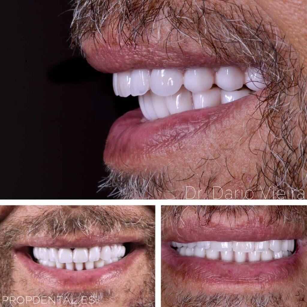 reconstrucción con implantes dentales