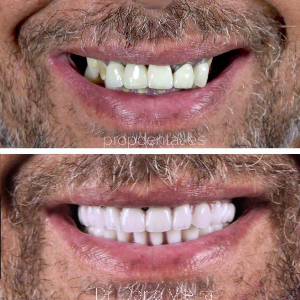 reconstrucción sonrisa con protesis sobre implantes