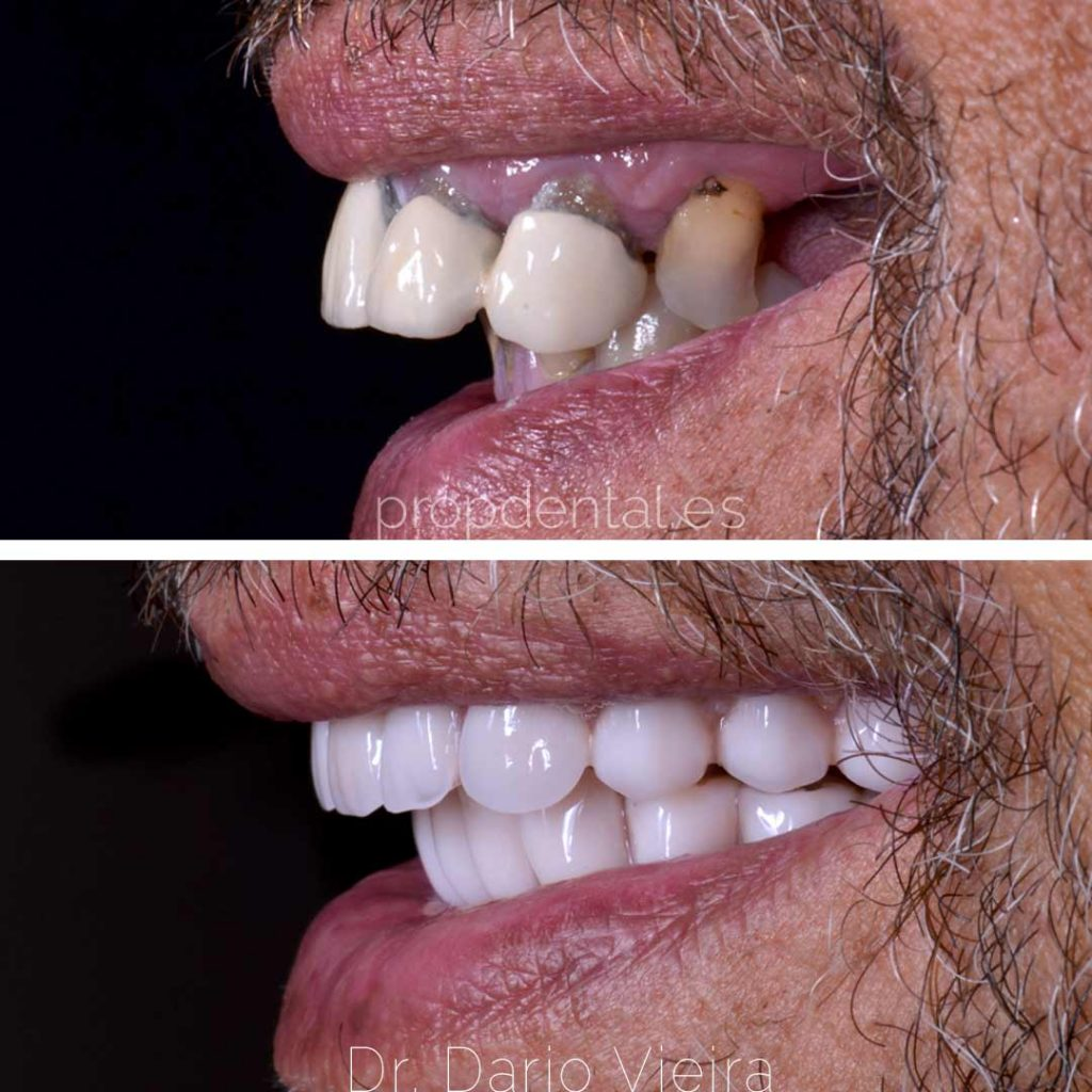 reconstrucción total implantes dentales