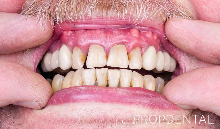 ¿Sabías que los refrescos afectan a tu sonrisa?