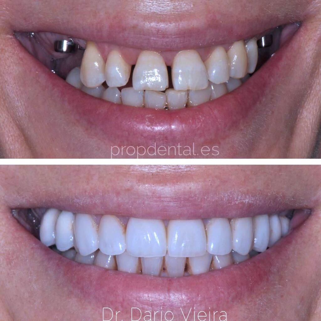 sonrisa-con-implantes-dentales