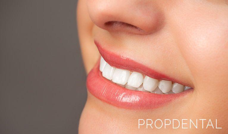estetica dental por que es importante una sonrisa bonita