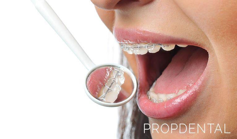 existe una edad ideal para llevar ortodoncia