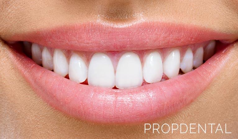 soluciones para la sonrisa gingival