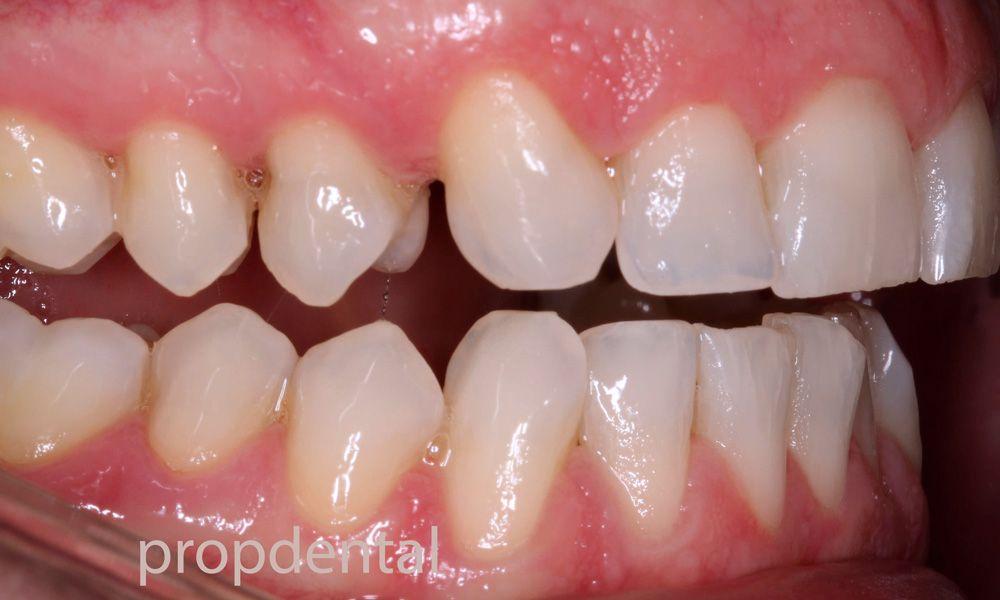 causas tratamiento desgaste dental