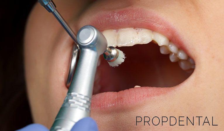 cuando necesito una limpieza dental profesional