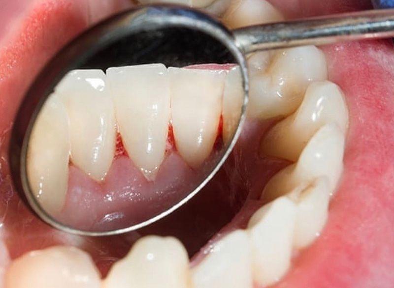 después de la limpieza dental