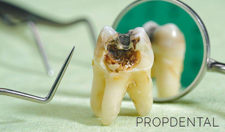 infecciones odontogenicas cual es su origen