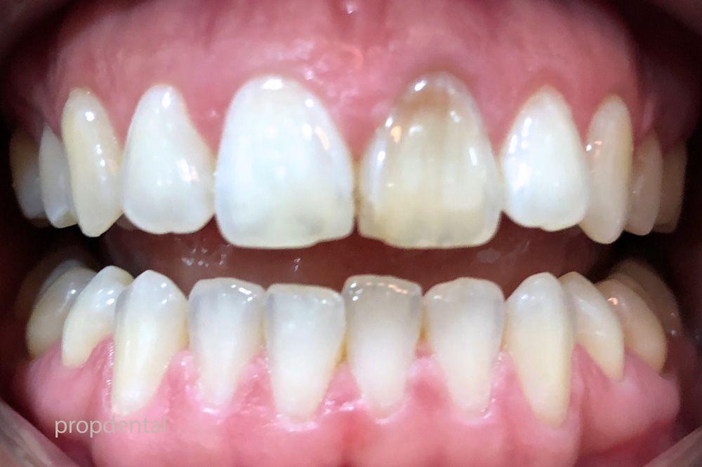tipos causas manchas en los dientes