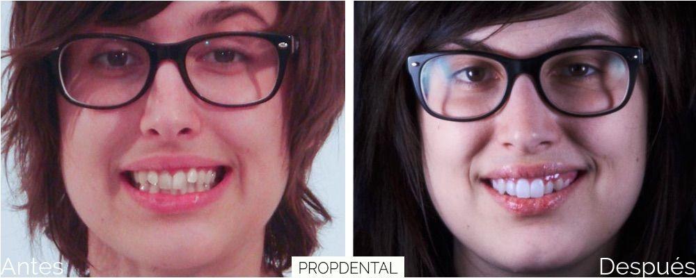 tratamiento de ortodoncia brackets