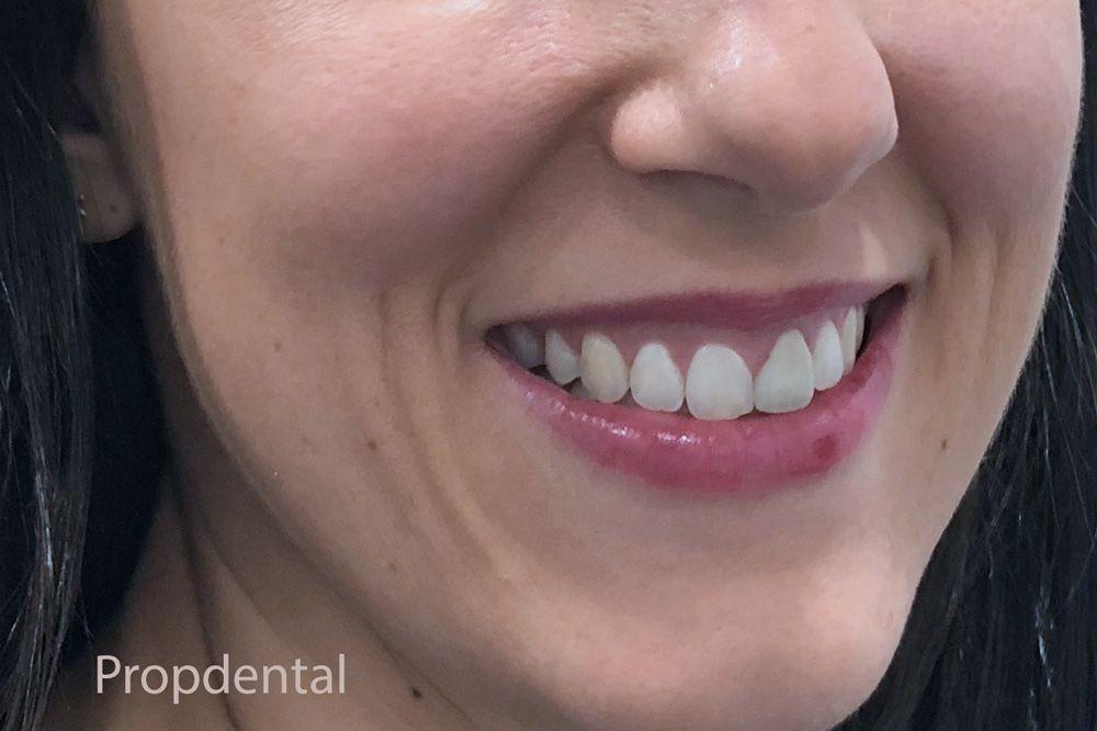 tratamiento manchas dentales